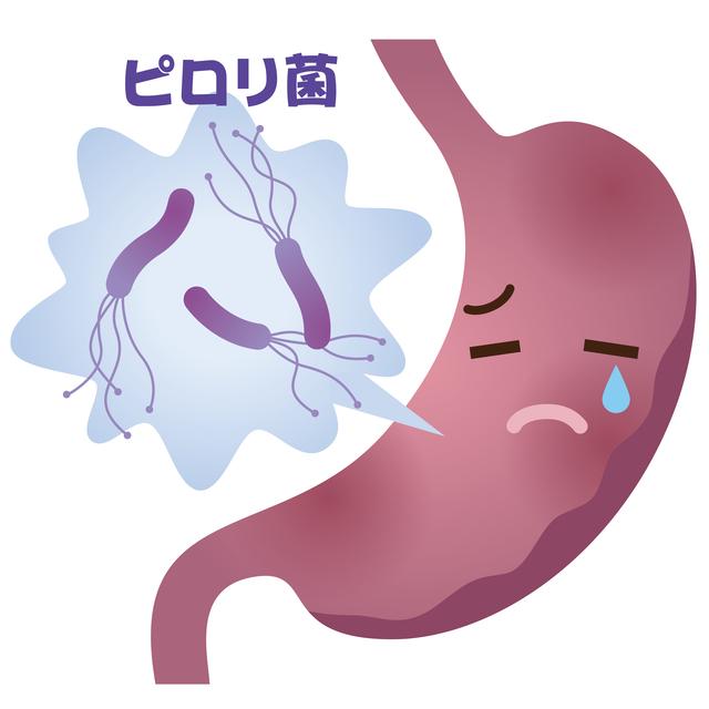 妊活と消化性潰瘍(胃潰瘍、十二指腸潰瘍)